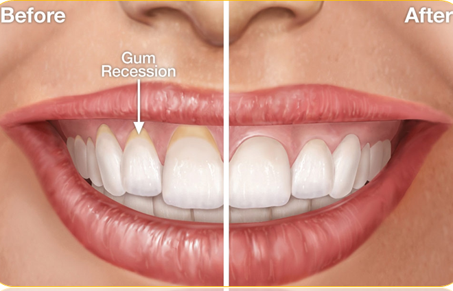 Receding Gums Causes And Treatment