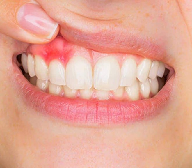 Difference Between Gum Disease And Receding Gums