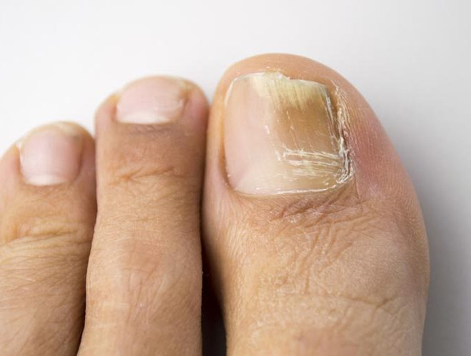 Nail Fungus – Symptoms and Treatments for Nail Fungal Infection