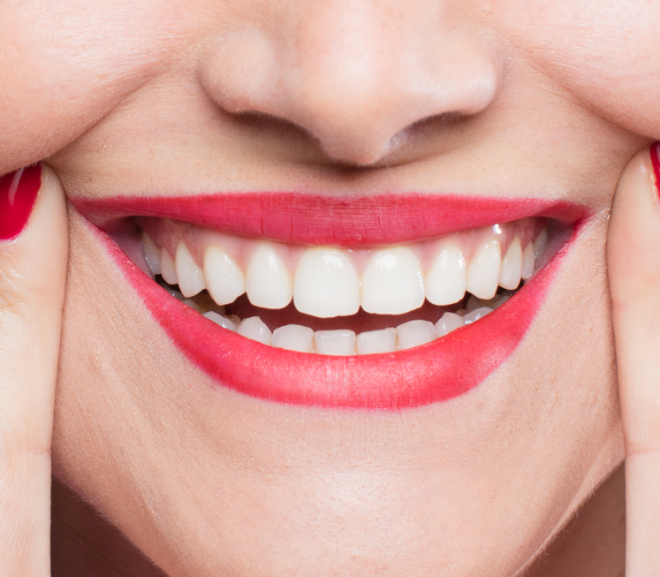 Teeth Whitening Treatments: Are they really safe?