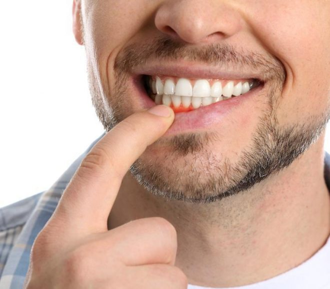 A Look At Gingivitis And Periodontal Disease