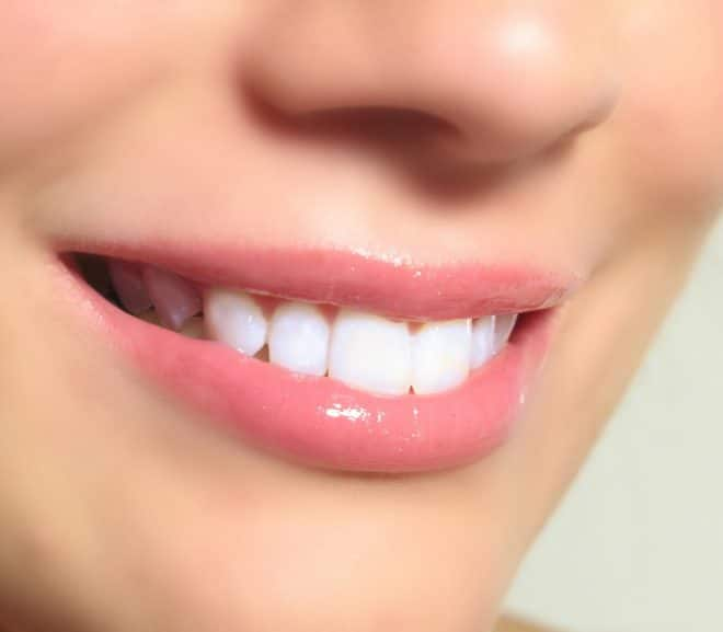 Straightening Your Teeth May Be Good for Your Health